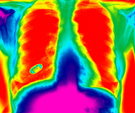 New York City medical malpractice Alert: New study finds CT lung scans can lead to many false alarms