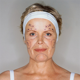 10 Red Flags of Plastic Surgery