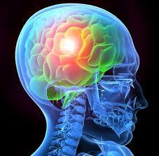 Did You Know? Car Accidents Are a Leading Cause of Traumatic Brain Injury